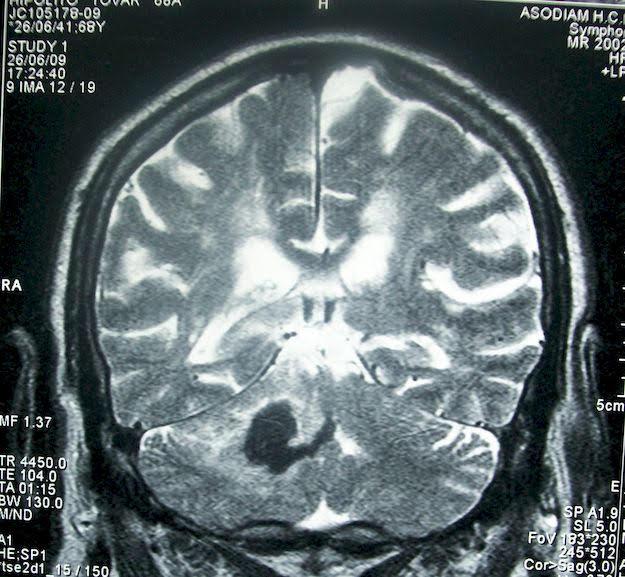 Élet az agyvérzés után: belül ugyanaz