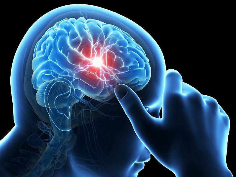 Neurológus szakorvos, Dr. Magyari Ágota összegzése a STROKE-ról érthetően, laikus olvasóknak.